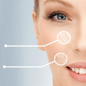 skin-consultation